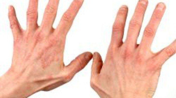 Psoriazis dureri articulare in timp